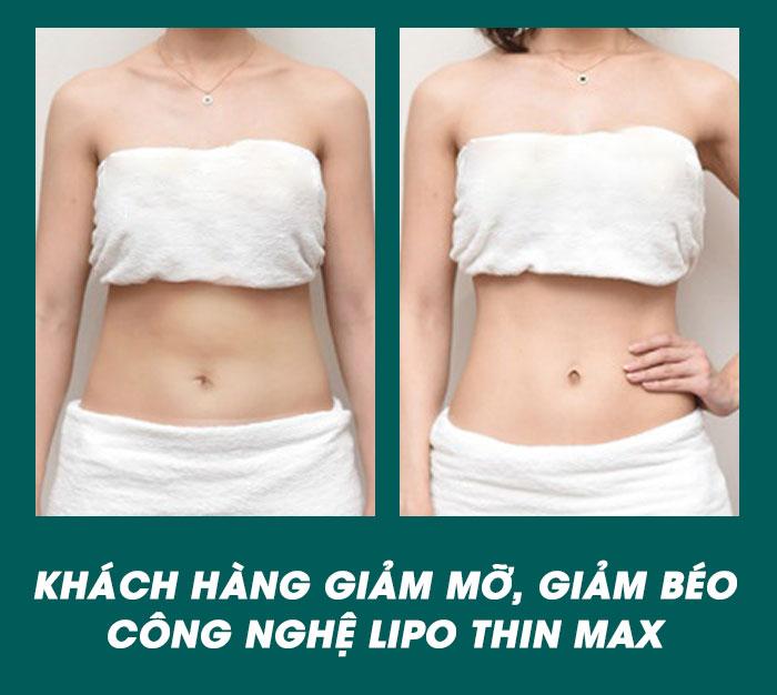 Giảm béo Lipo Thin Max
