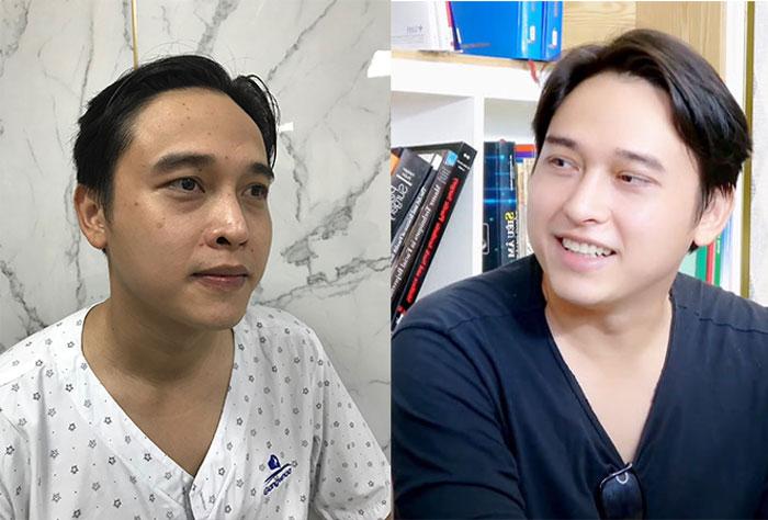 Âu Thành Cát trước và sau làm đẹp tại bệnh viện thẩm mỹ Gangwhoo